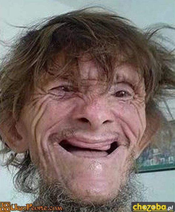 Widziałeś moje zęby?
